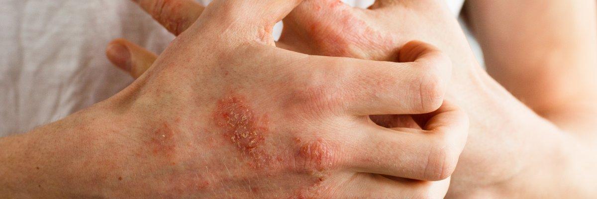 vörös folt a könyökön és viszket crack psoriasis kezelése