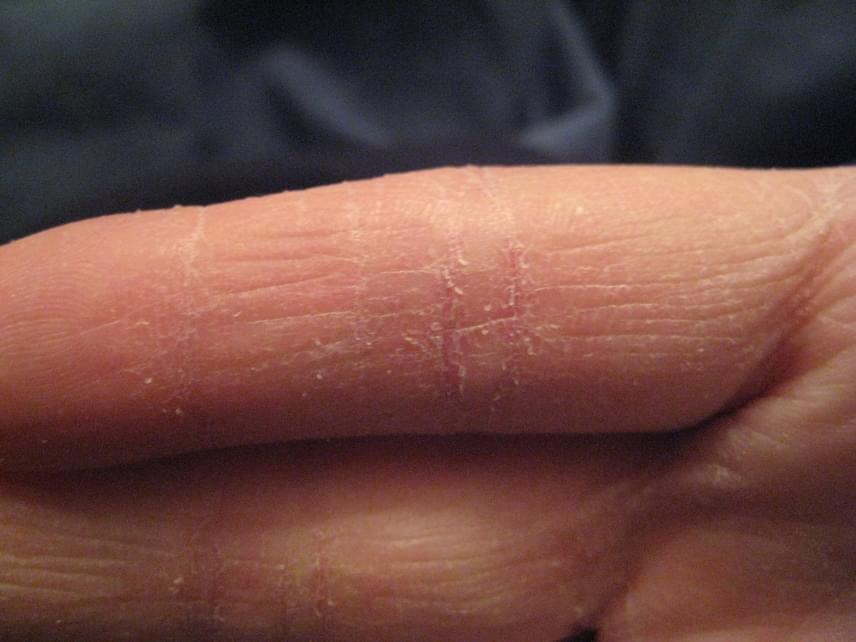 vörös durva folt jelent meg a kéz bőrén a kezek bőre hámlik és vörös foltok vannak