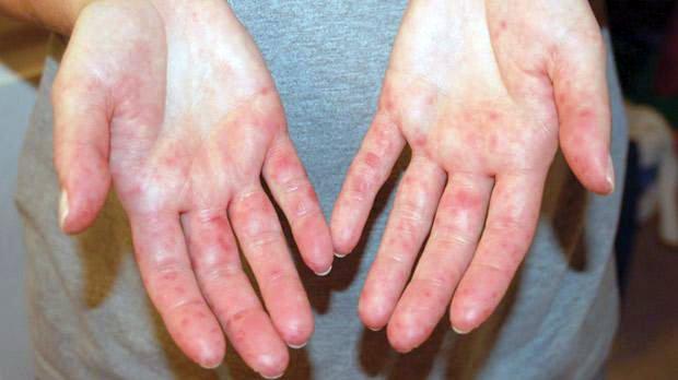 vörös foltok az arcon ok és kezelés maklura pikkelysömör kezelése