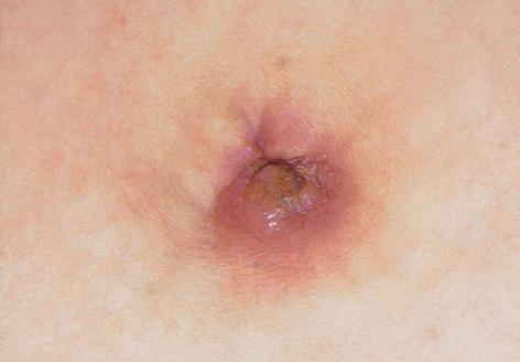 nagy piros foltok a gyomorban bőrápoló termékek pikkelysömörhöz