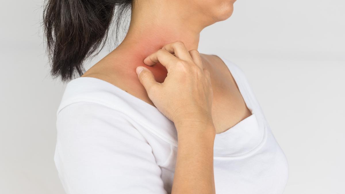 hogyan lehet eltávolítani a vörös foltot a fején hogy a foltok viszketnek-e lupus erythematosus-szal