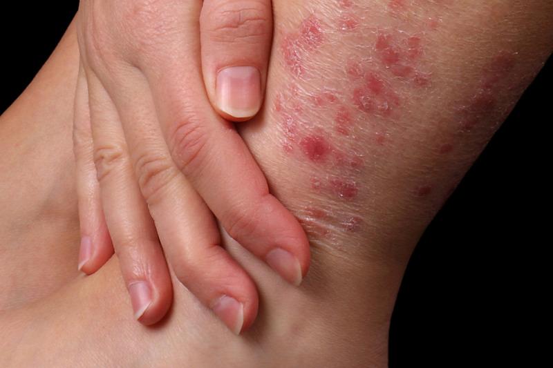 hogyan lehet gyógyítani a pikkelysömör a térdén jól körülhatárolható vörös folt a bőrön