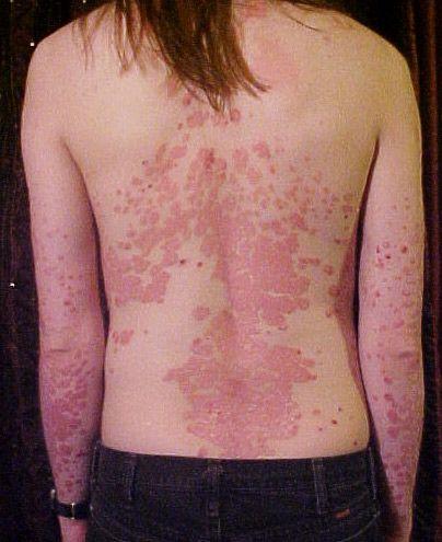 pikkelysömör kezelsi rendszerem mik a foltok a vörös hámlás arcán