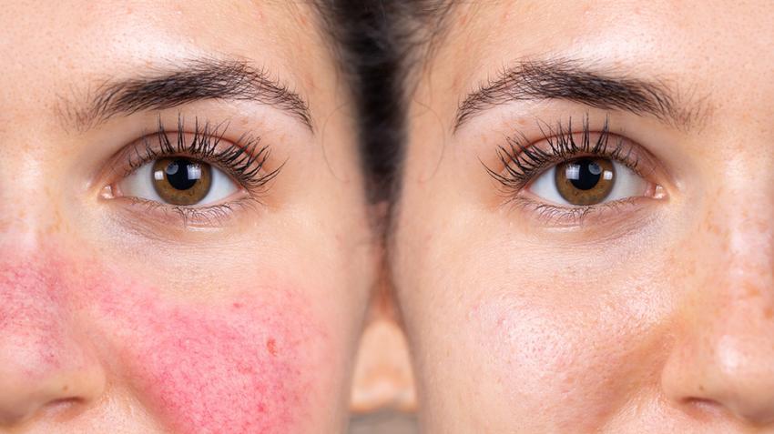 bőrbetegségek az arcon piros foltok fényképpel