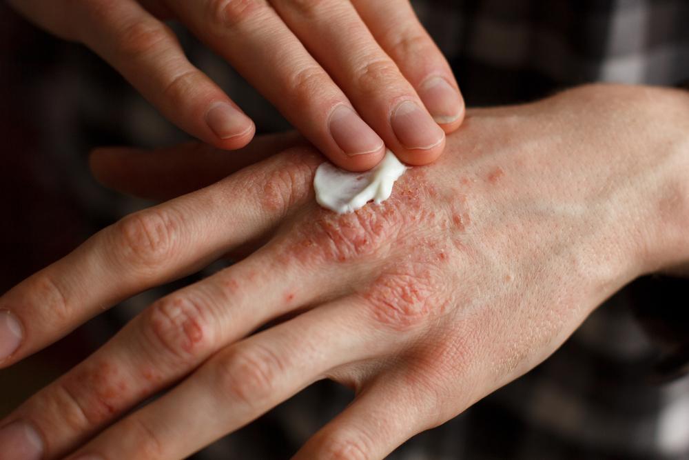 pikkelysömör kezelése népi gyógymódokkal pikkelysömör vörös folt jelent meg a bőr alatti lábon