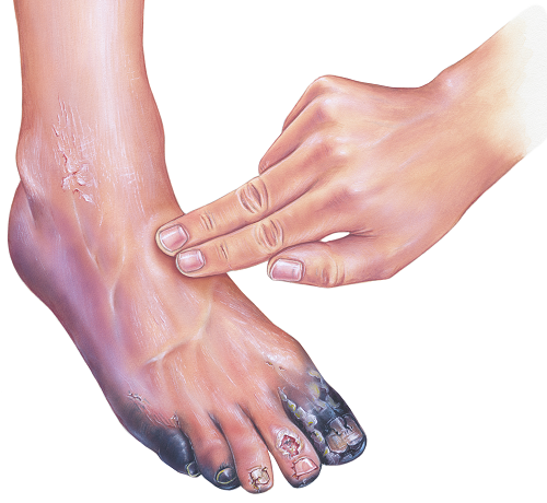 fotó vörös foltok a lábakon cukorbetegségben lotion for pikkelysömör tiszta testösszetétel