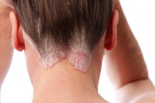 hogyan kell kezelni a pontszerű pikkelysömör apró piros foltok a hát bőrén