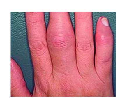 hogyan kell kezelni az artritisz pikkelysömörét vörös folt jelenik meg a bőrön és pelyhek