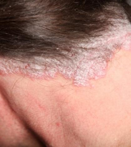 pikkelysömör a fejen fotó kezdeti szakasz kezelési fotó