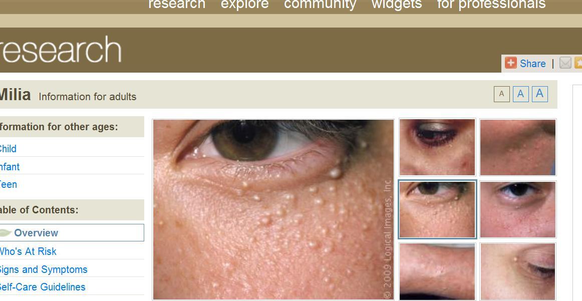 pikkelysömör kezelése a szem közelében vörös foltok világos határokkal a bőrön