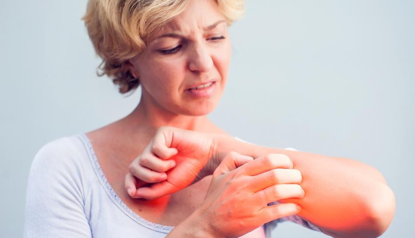 krém kezelése pikkelysömörhöz piros folt jelenik meg az ujján és viszket