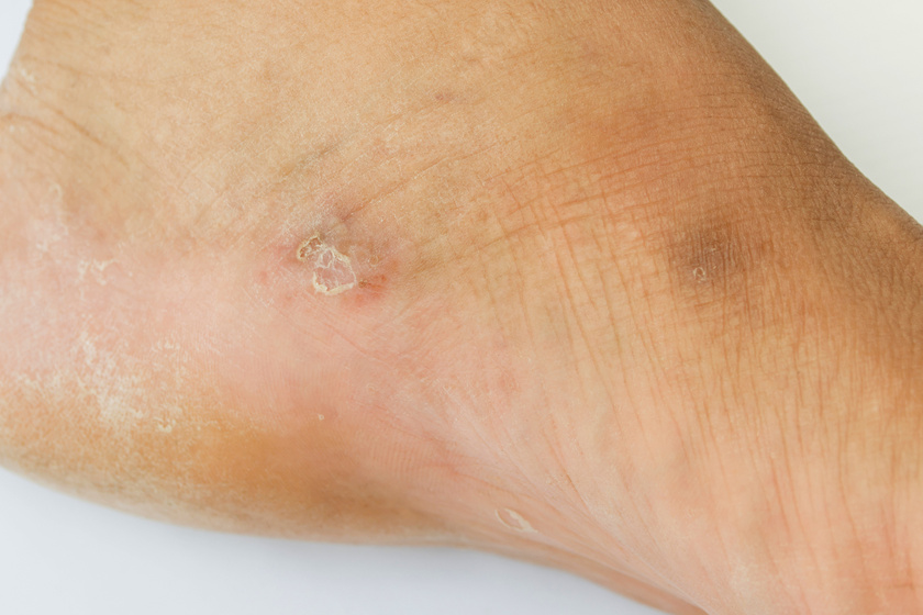 vörös folt a lábán 1 cm hírek a pikkelysömör kezelésében 2020-ban