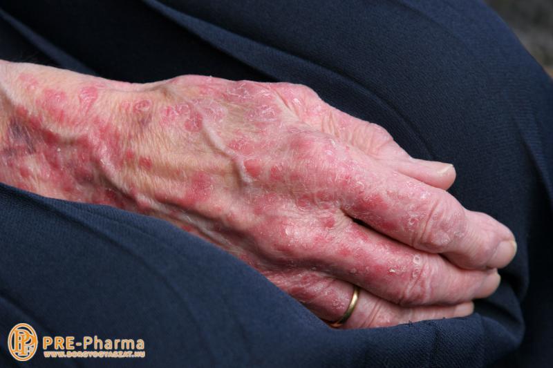 pikkelysömör a tenyereken kezels a lábán vörös folt melegebben fáj