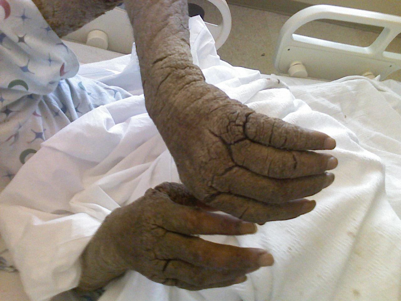 spa szanatórium pikkelysömör kezelése