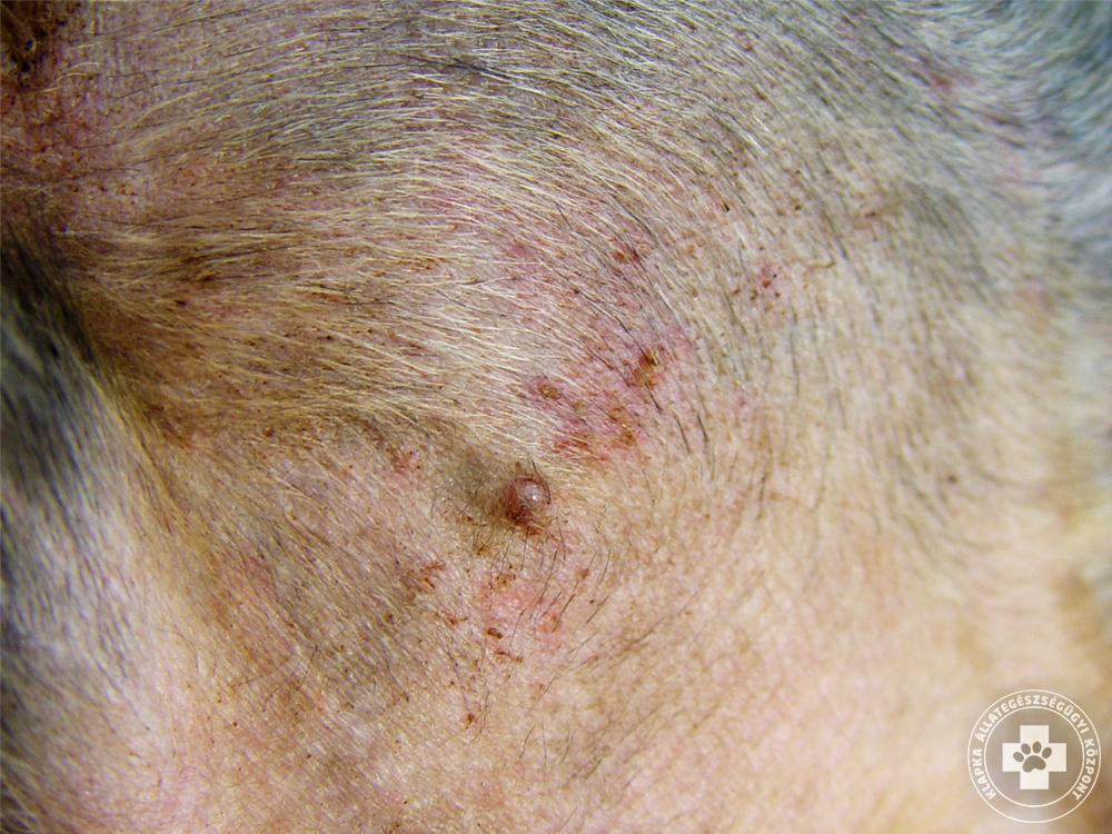 bőrgyógyászat vörös folt a bőrön pikkelysömör a lábakon kezelés otthon