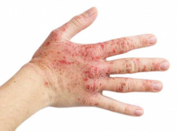 pikkelysömör és hiv kezelése miért jelent meg a. arc vörös foltok
