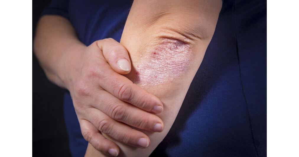 hogyan lehet eltvoltani a foltok pikkelysömör után miért jelennek meg a bőrön az arc vörös foltjai