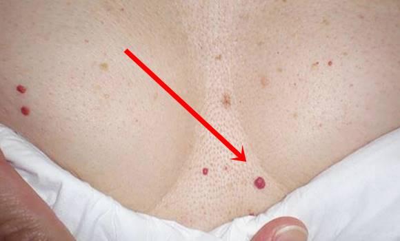 a bőr alatt vörös folt vérrel a kezdeti szakasz pikkelysömörének kezelése