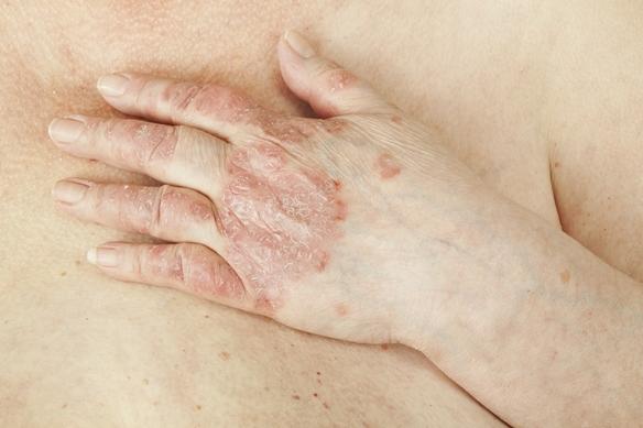 Rettegett betegség: a pikkelysömör   TermészetGyógyász Magazin