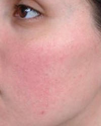 homeopátia vörös foltok az arcon