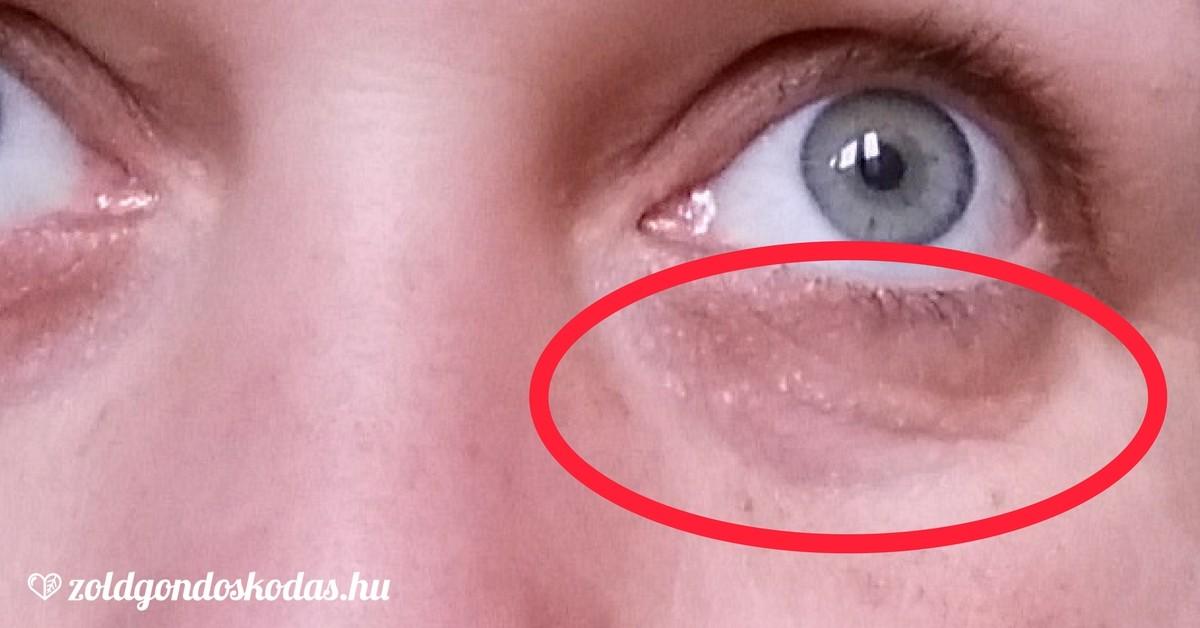 vörös foltok a szem alatt hogyan kell kezelni vörös folt az arc bőrén viszket