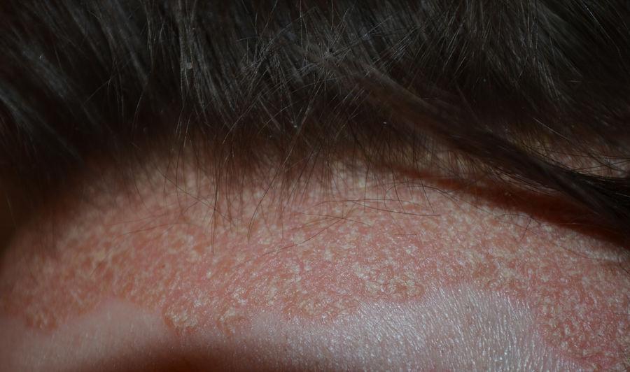 pikkelysömör, aki mit gyógyított a maszk után vörös foltok az arcon