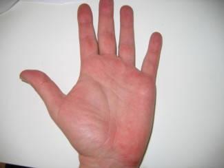 piros folt a bal kézen