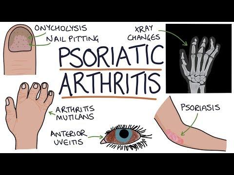 onycholysis pikkelysömör kezelésére a lábak pikkelysömörét hogyan kell kezelni