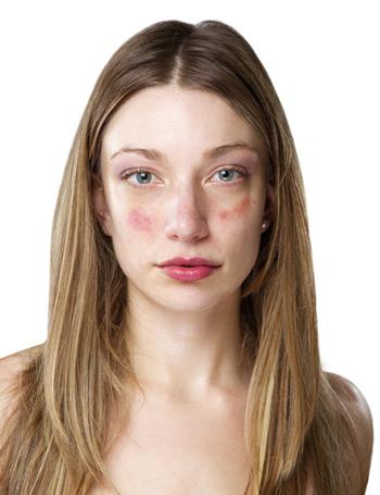 az arc aggódáskor vörös foltokkal borul vörös foltok jelennek meg az arcon szárazság mi ez