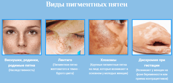 hogyan lehet eltávolítani a vörös foltokat az arcbőrről szenes pikkelysömör kezelése