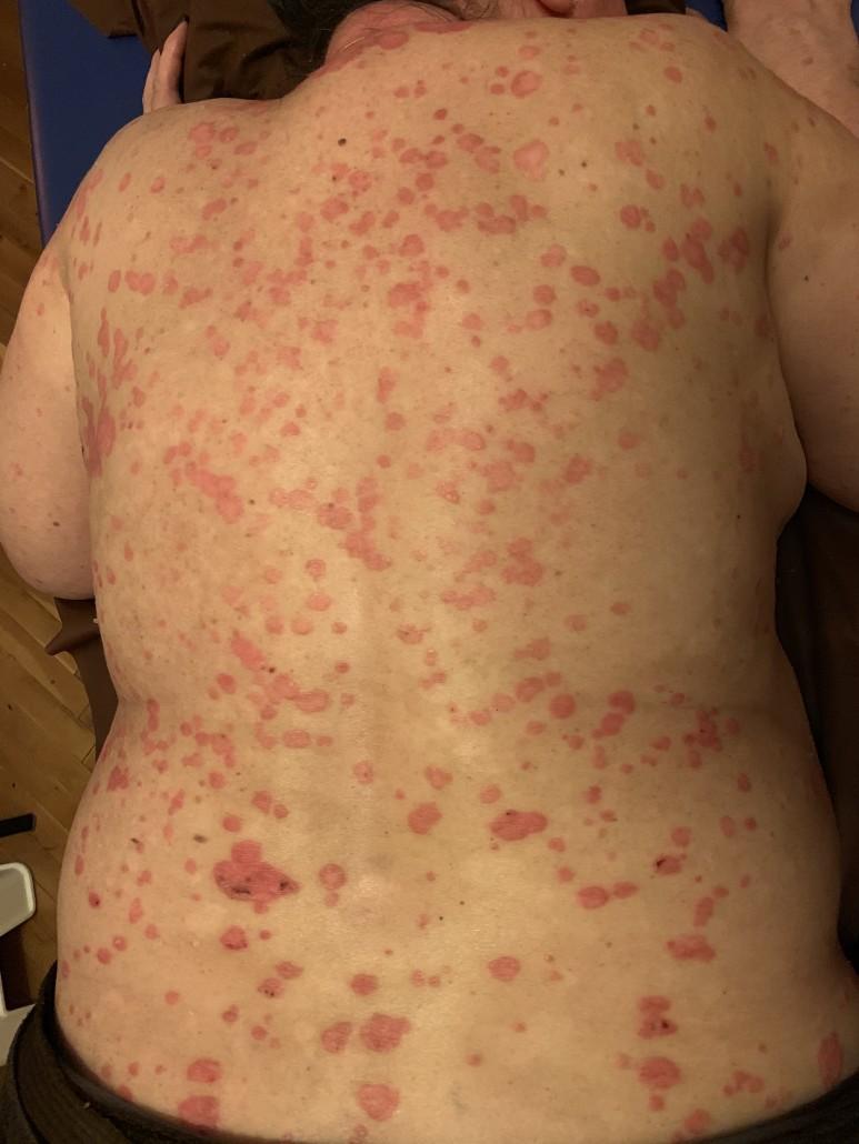 emberek pikkelysömör gyógymódok vörös foltok az arcon, hámló bőr