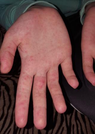 vörös folt a kezén