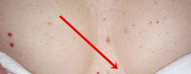 a lábán egy vörös durva folt van egy felnőttnél)