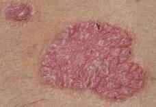 pikkelysömör kezelésére elecampane halványvörös foltok a hasán