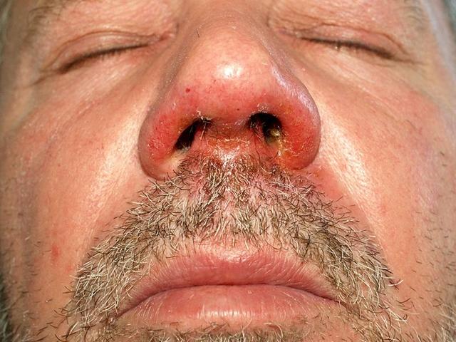 kiütés a fejbőrön vörös foltok formájában, viszkető felnőtteknél