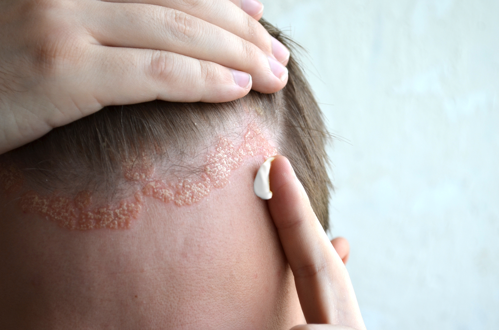 pikkelysömör tünetei otthoni kezelés monoklonlis antitestekkel gygyszer a pikkelysmr ellen