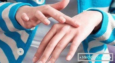 A férgek viszketésének kezelésében. A cérnagiliszta fertőzés tünetei és kezelése
