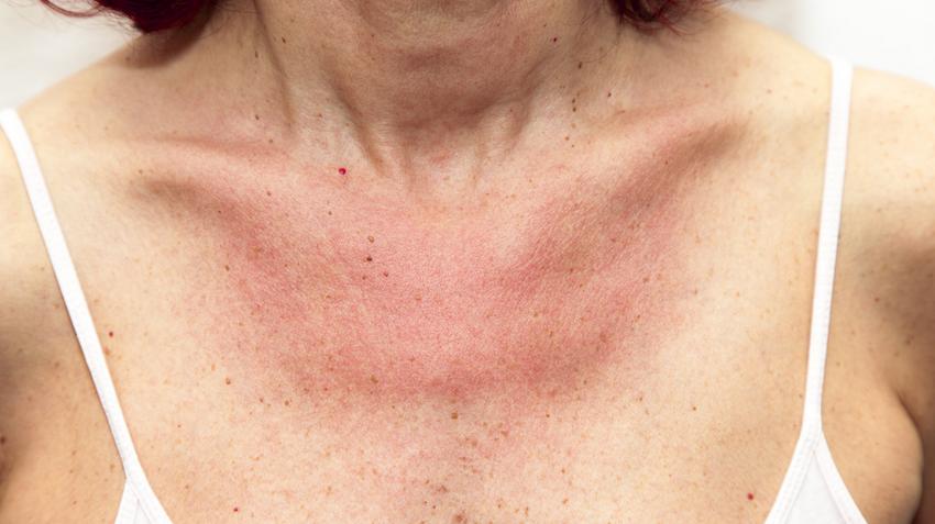 vörös pikkelyes foltok a nyakon egy felnőttnél piros térd viszket a térdén