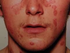 az arcon nagy vörös foltok pikkelyesek