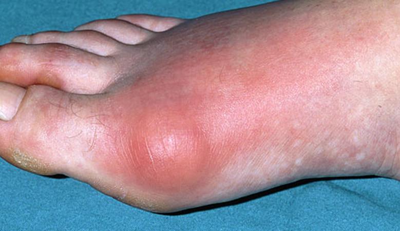 vörös dudor a láb bőrén
