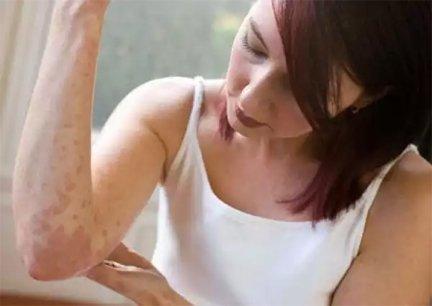 momordica pikkelysömör kezelése