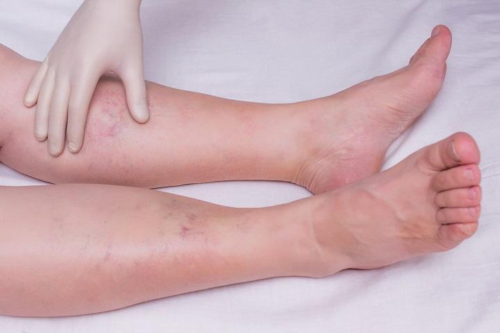 vörös foltok a lábakon és a lábujjakon