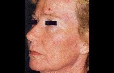 vörös pikkelyes foltok a nő arcán