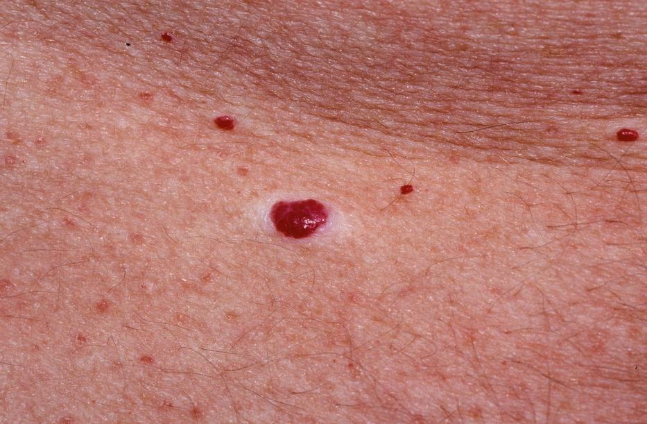 apró piros foltok a kezeken helyi kezelés a fejbőr pikkelysömörére