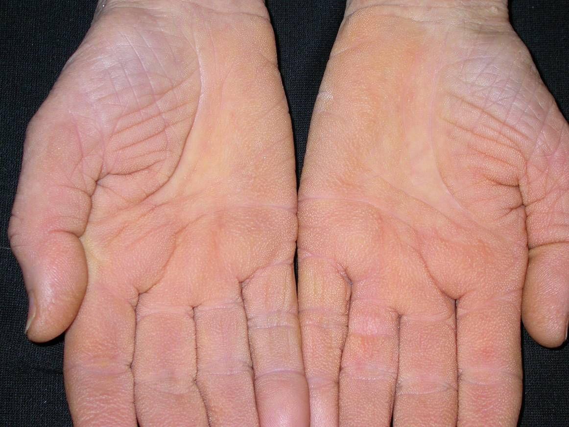 vörös foltok a tenyéren a bőr alatt mi ez vörös foltok az ujjakon okoznak