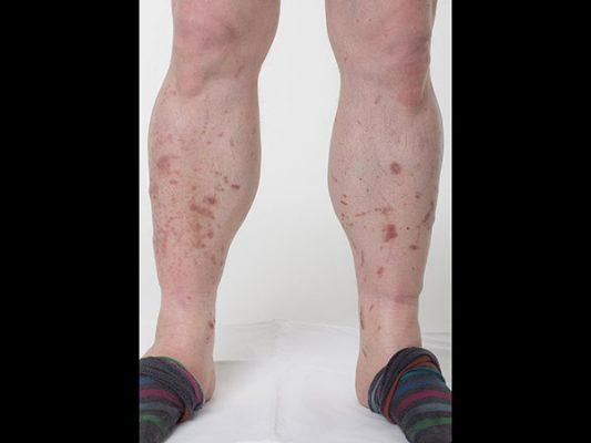 piros foltok az alsó lábszáron cukorbetegség fotó