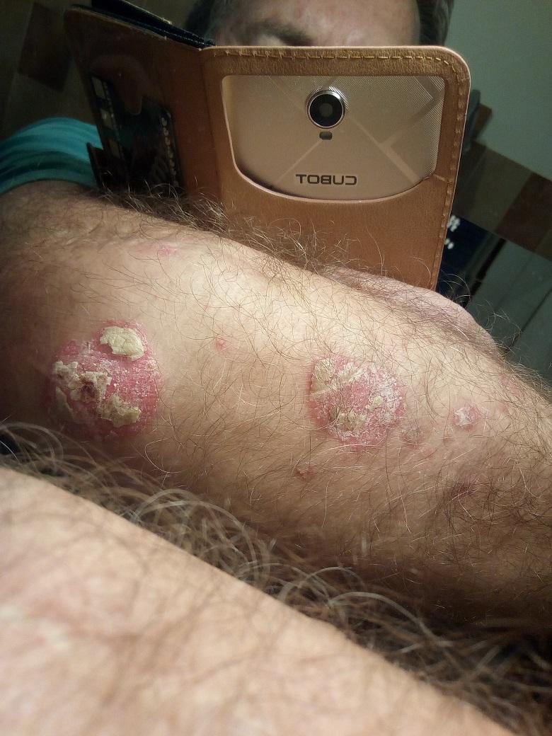 szukcesszió a pikkelysömör kezelésére kerek folt a bőrön, piros peremmel
