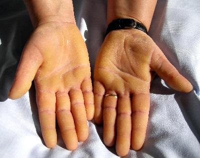 vörös foltok a lábakon és a karokon, duzzadt ujjak antiproliferatív hatású gyógyszerek a pikkelysömör kezelésére