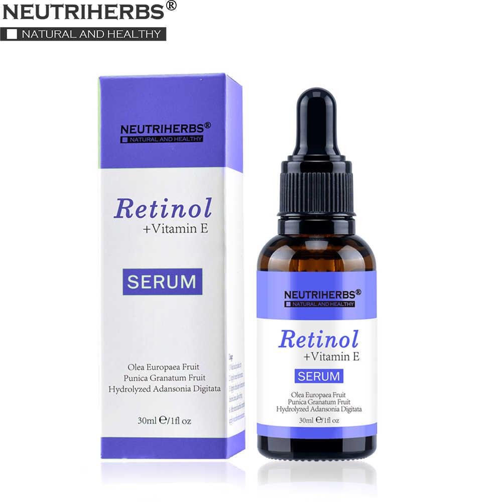 vitamin a pikkelysmr kezelsre kitörések a bőrön vörös foltok formájában viszketéssel hogyan kell kezelni