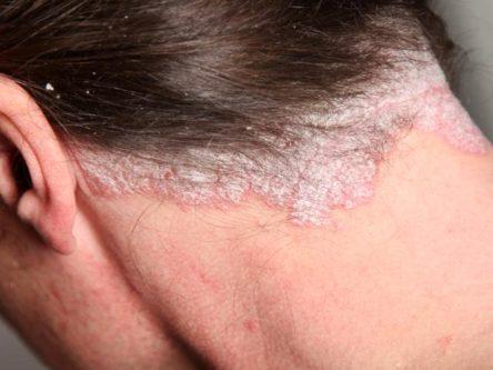 lehetséges-e pikkelysömör kezelése napsugarakkal a lábán vörös folt melegebben fáj